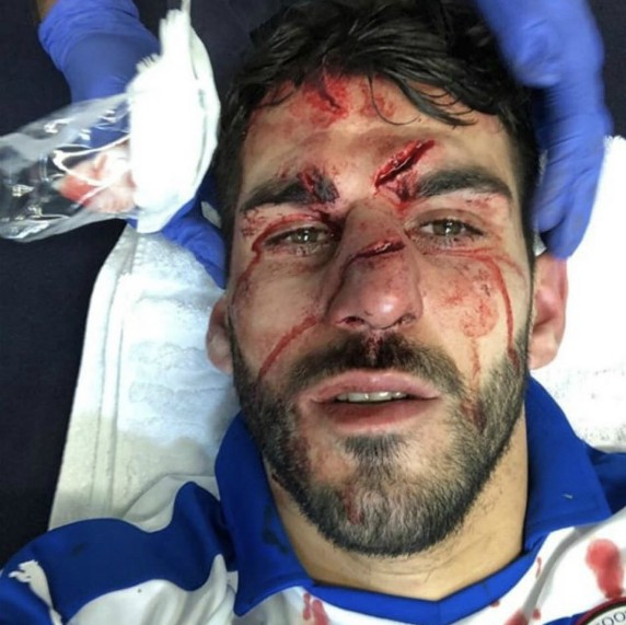 Nelson Oliveira Face After Tyrone Mings Stamp